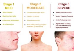 5 Vitamins Which Can Prevent And Cure Different Type Of Acne with regard to Vitamins To Help Acne