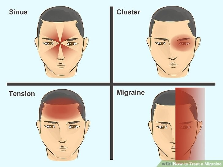 5 Ways To Treat A Migraine - Wikihow within What Helps A Migraine 46482