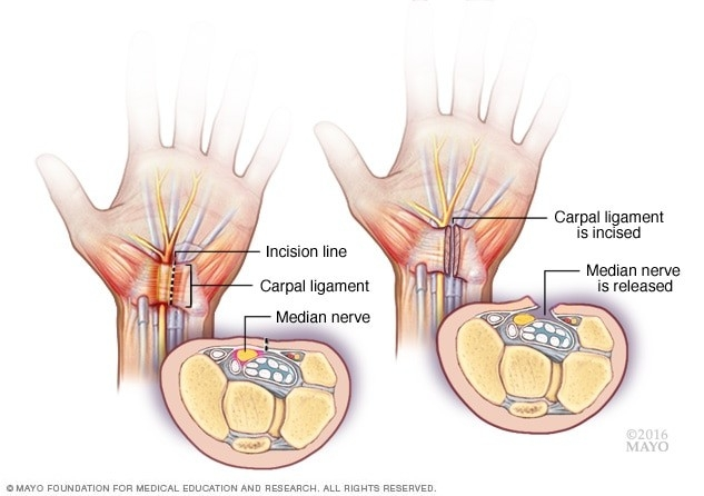 Carpal Tunnel Syndrome - Diagnosis And Treatment - Mayo Clinic in How To Help Carpal Tunnel 46221