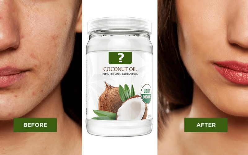 Does Coconut Oil Help Acne Scars? throughout Can Coconut Oil Help With Acne 48241