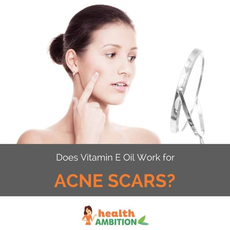 Does Vitamin E Oil Work For Acne Scars? - Health Ambition pertaining to Does Vitamin E Help Acne 45969