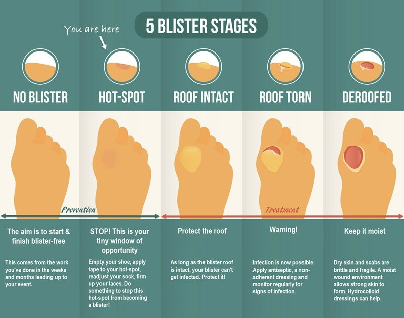 Foot Blister Treatment 101: How To Treat Your Foot Blister To Heal regarding How To Help Blisters 46992