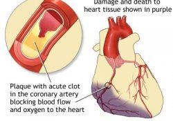 Heart Attack: Medlineplus Medical Encyclopedia intended for Definition Of Heart Disease