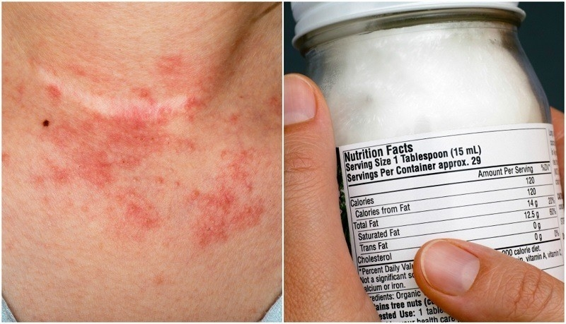 How Coconut Oil Works Wonders For Healing Eczema for Does Coconut Oil Help Eczema 48017