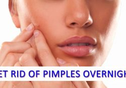 How To Get Rid Of Pimples Overnight Using Lemon Juice: Step By Step pertaining to Does Lemon Juice Help Acne