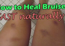 How To Remove Bruises Fast Naturally | How To Heal Bruised On Bodies inside How To Help Bruises Heal