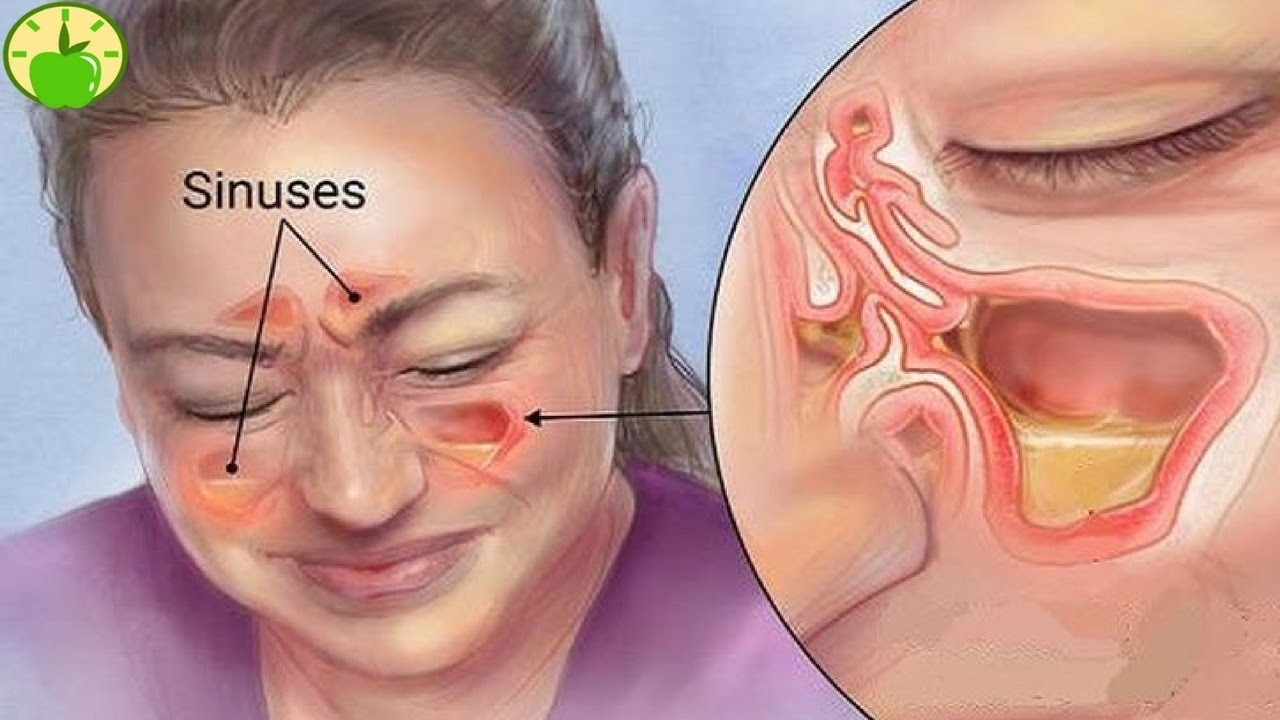 Kills Sinus Infection In 20 Seconds With This Simple Method Of The pertaining to How To Help A Sinus Infection 46413