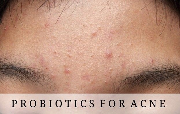 Topical Probiotics And Acne | Just Natural Skin Care | Pinterest with Probiotics Help Acne 48212