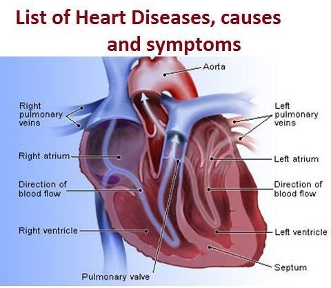 Various Types Of Heart Diseases, Causes And Symptoms with regard to List Of Heart Diseases 36716