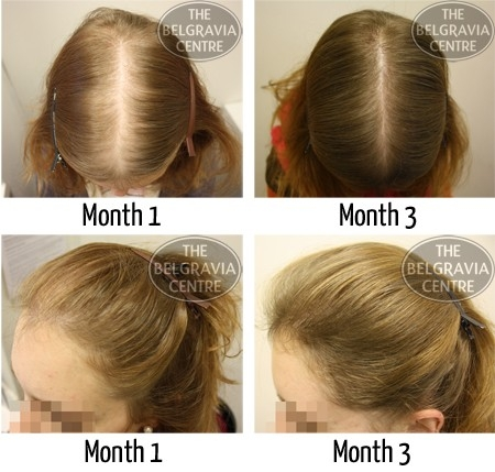 Will Hair Extensions Help My Thinning Hair?' intended for Help For Thinning Hair 47832