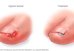 Ingrown Toenails - Diagnosis And Treatment - Mayo Clinic in Ingrown Toenail Help
